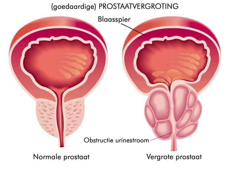 vergrote prostaat en erectieproblemen